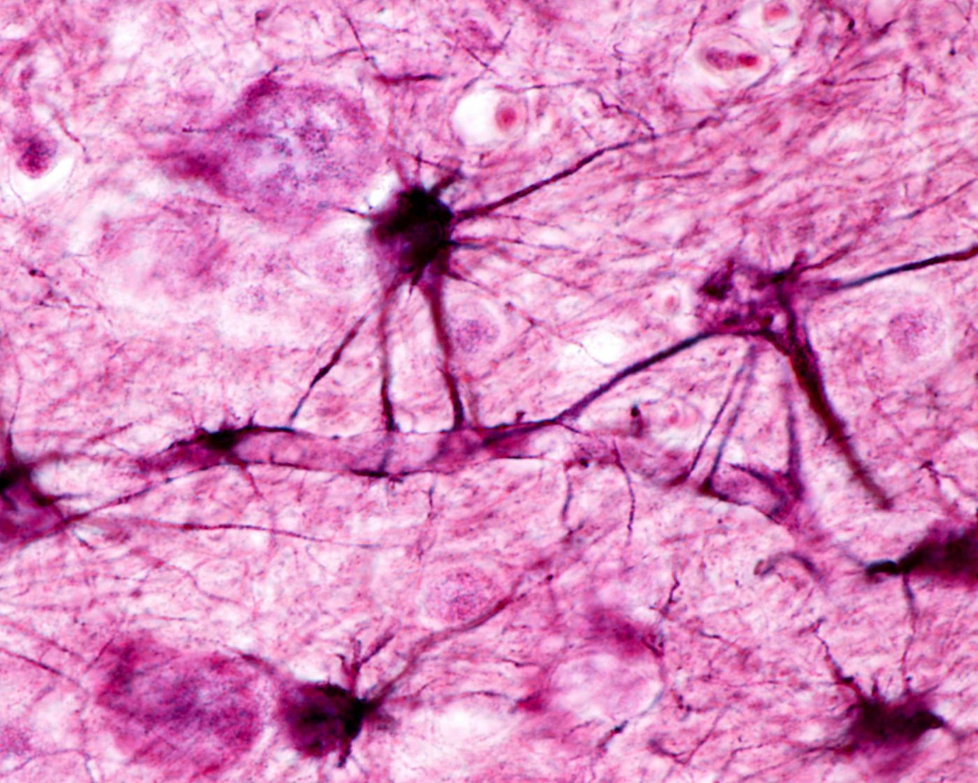 Astrocytes Play a Role in Neurodegenerative Diseases