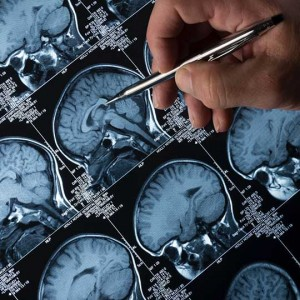Test to Diagnose Parkinson's and Lewy Body Dementia