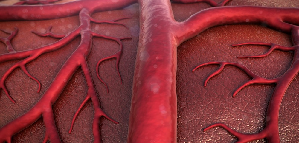 Parkinson's Disease Symptoms Traced to Excess Blood Vessel Formation