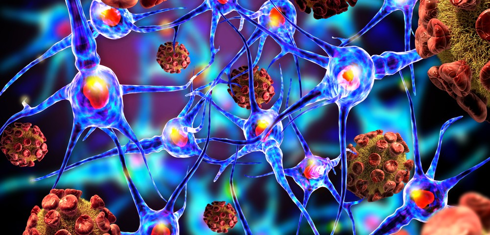 Parkinson's Patients Using Anticholinergic Drugs Not at Higher Dementia Risk