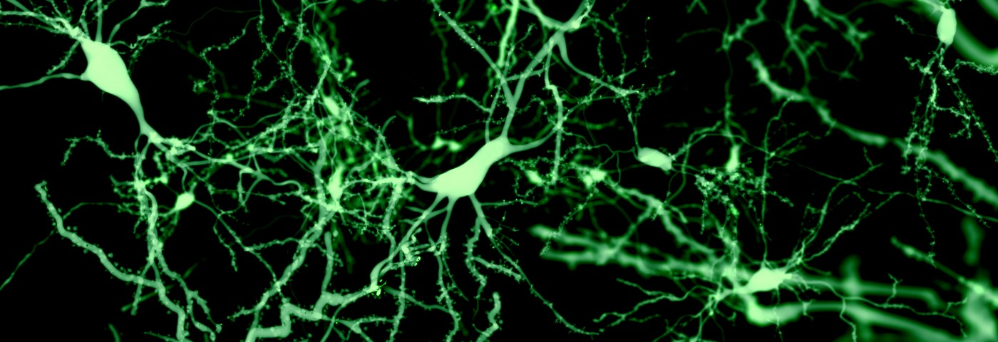 3-D 'Scaffolds' Supporting Healthy Neurons Offer New Stem Cell-Treatment Approach for Parkinson's
