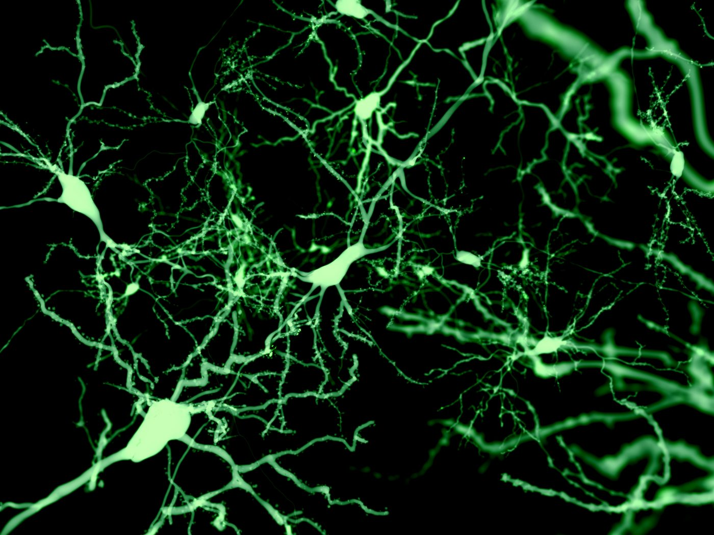 3 D Scaffolds Supporting Healthy Neurons Offer New Stem