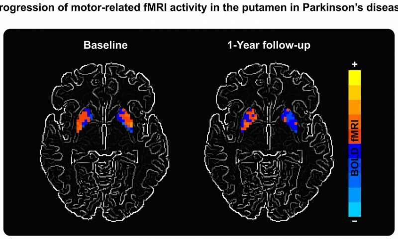MRI Scans That Capture Parkinson's Progression May Aid in Research