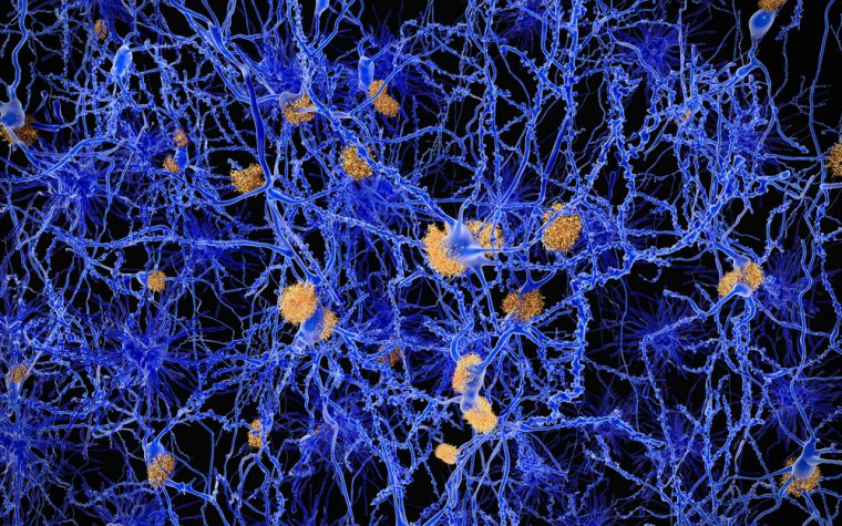 Protein aggregates contribute to Parkinson's and other neurodegenerative diseases. The discovery of a new factor controlling the clearance of aggregates give insights into processes allowing proteins to accumulate in the brain.