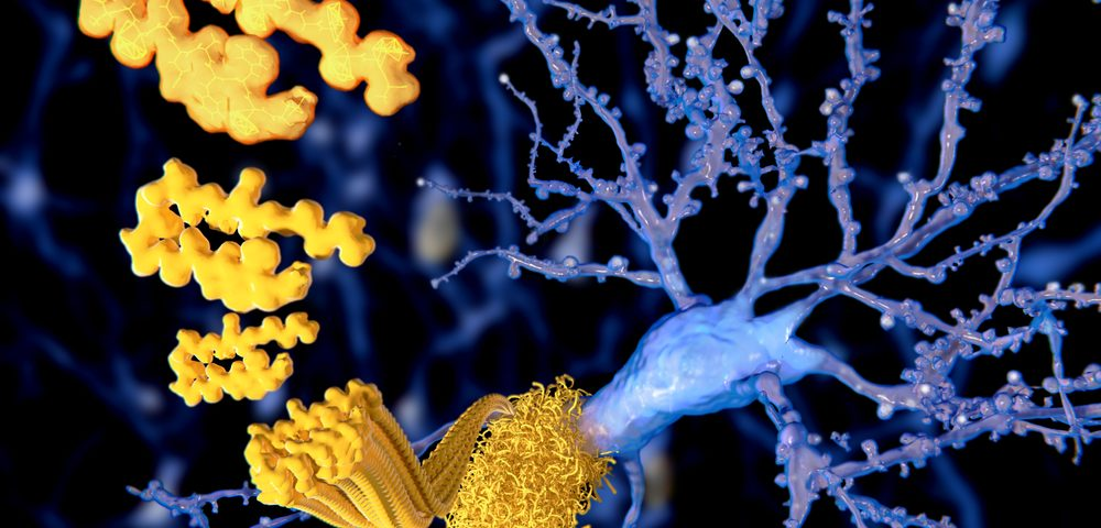 Protein in Brain Associated with Different Stages of Parkinson's Disease, Study Shows