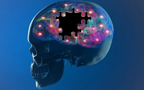 SPECT Brain Imaging May Not Predict Dopamine Neuron Loss in Parkinson's