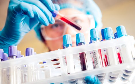 Biomarker in Blood Tests May Help Distinguish Parkinson's from Similar Diseases