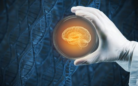 First Dose Group in Parkinson's Stem Cell Trial Successfully Transplanted