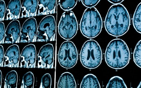Study Links Parkinson's Patients' Depression to Deterioration of White Matter in Their Brains