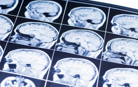 Deep Brain Stimulation Improves Some Parkinson's Symptoms But at Risk of Greater Apathy, Study Shows